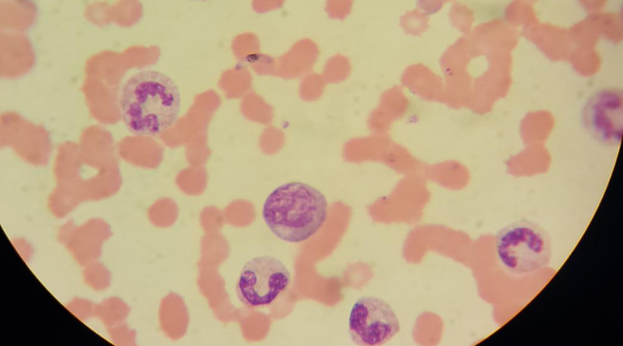 Microscope image showing blood smear of plasmodium falciparum infection
