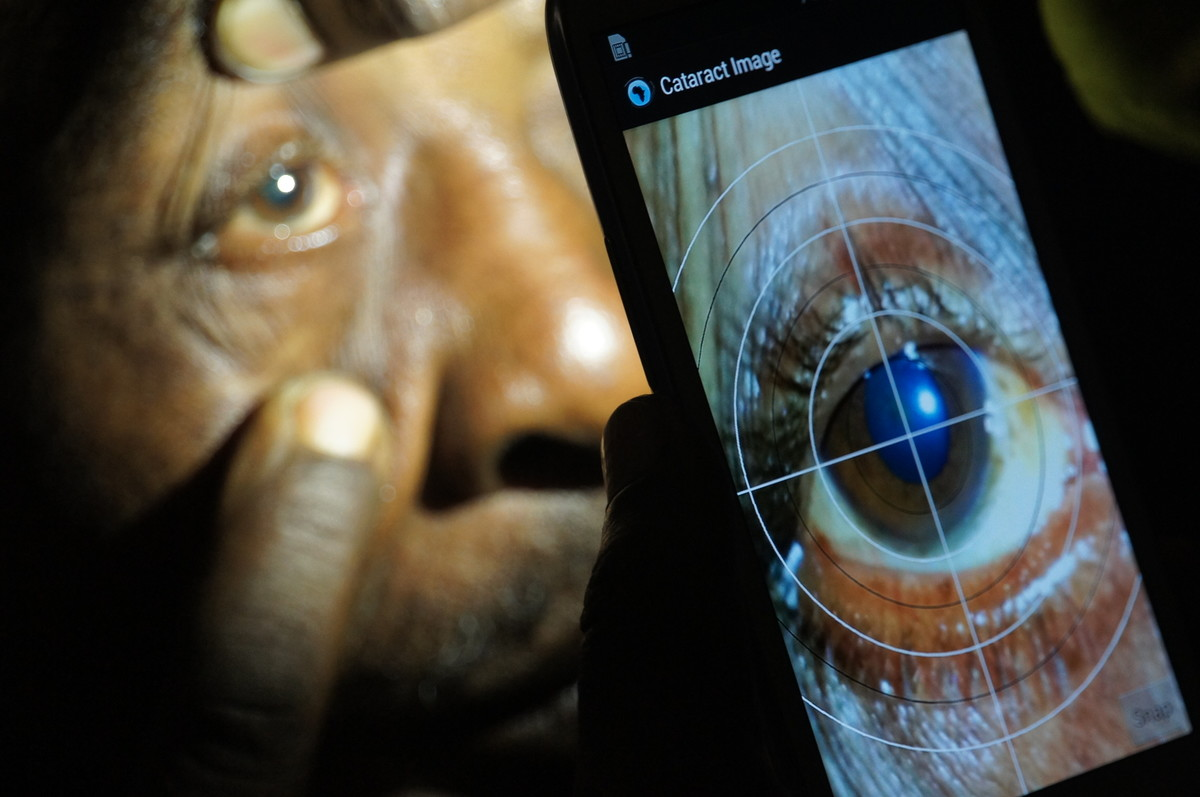 Caption: Cataract diagnosis via Peek technology in Kenya. Credit: Andrew Bastawrous