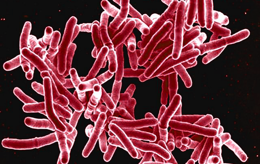 Digitally colorised microscopic image of rod shaped Mycobacterium tuberculosis
