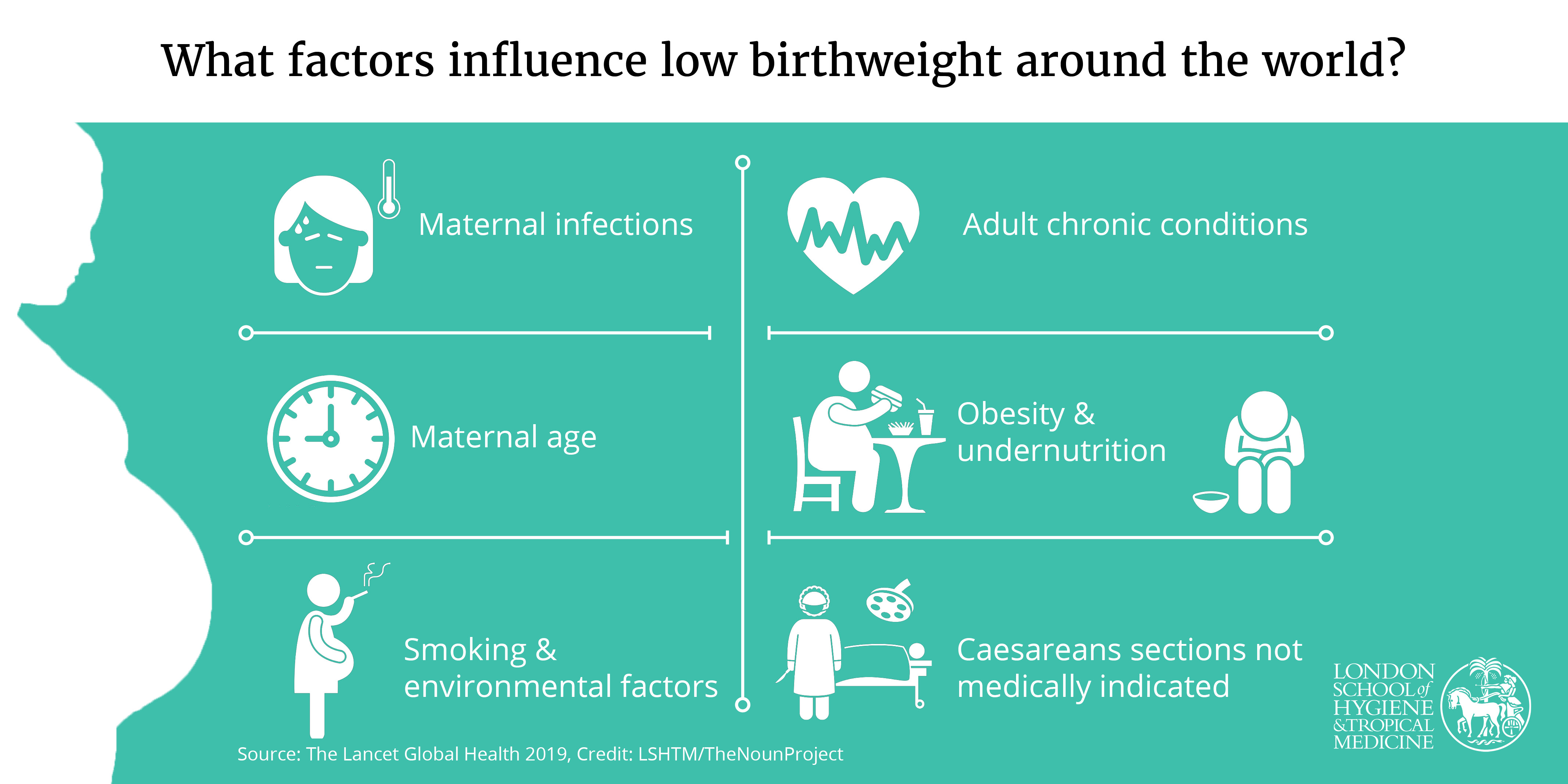 What factors influence low birthweight around the world?