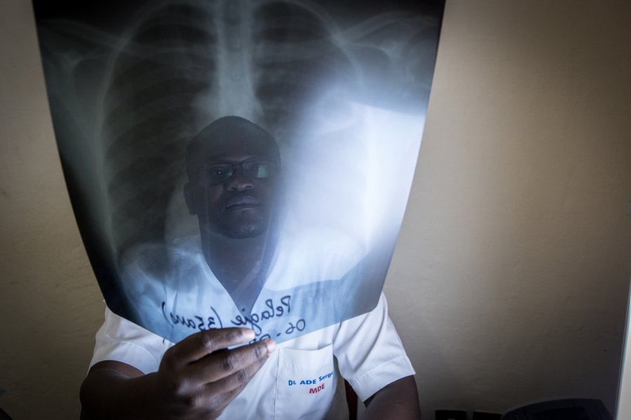 Man holding lung X-ray. Credit: The Union