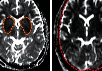 Transient oxygen deprivation is seen in the basal ganglia part of the brain in adults with non-fatal cerebral malaria (darker areas highlighted, left). The authors showed for the first time that fatal cerebral malaria in adults is associated with a profound lack of oxygen seen in the whole brain (dark areas throughout the organ, right). Credit:https://doi.org/10.1093/cid/ciaa1647 - Clinical Infectious Diseases