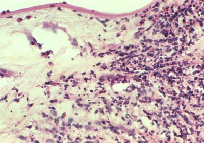 Credit: Corneal tissue sample showing fungal infection Credit: CDC Public Health Image Library