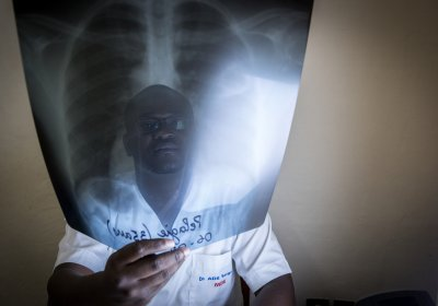 Caption: man holding lung x-ray. Credit: the Union