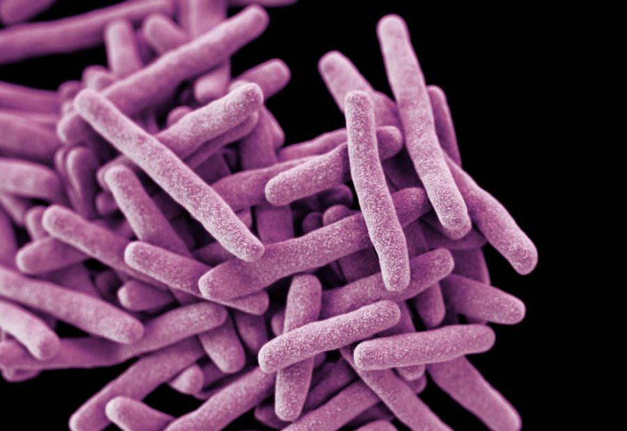 3D computer-generated image of a cluster of rod shaped drug-resistant Mycobacterium tuberculosis bacteria