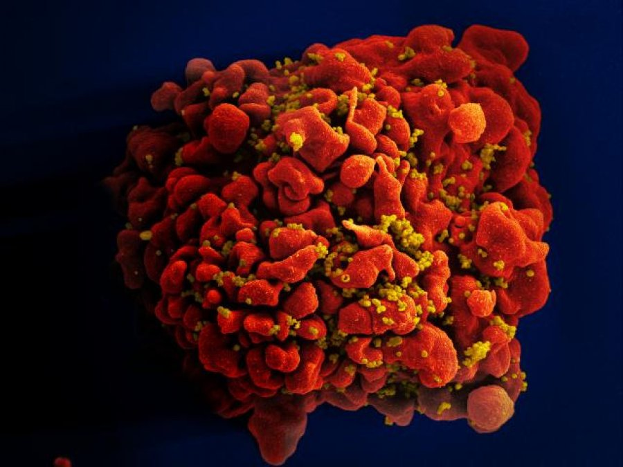 Scanning electron micrograph of an HIV-infected H9 T cell. Credit: NIAID