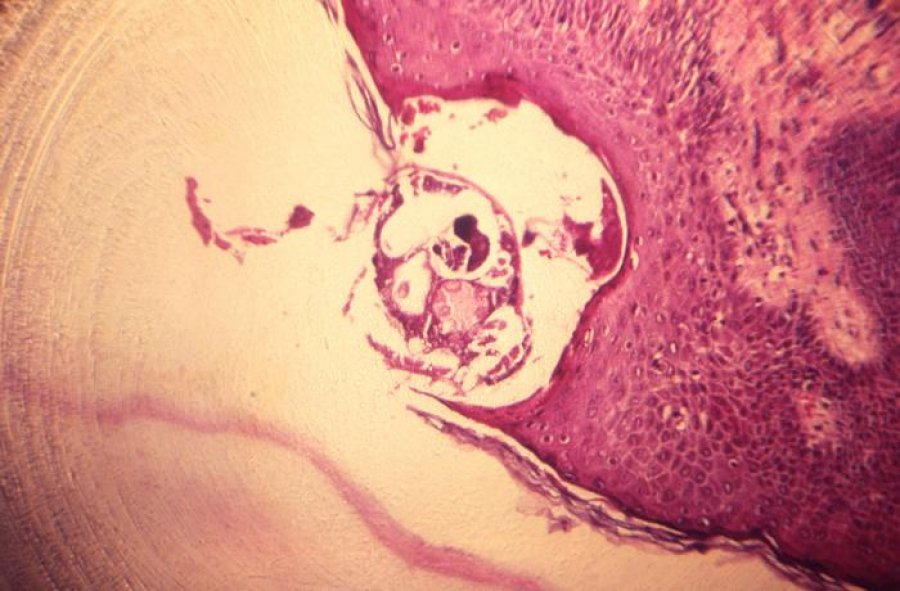 Caption: Photomicrograph of scabies burrowed into skin tissue Credit CDC Public Health Image Library