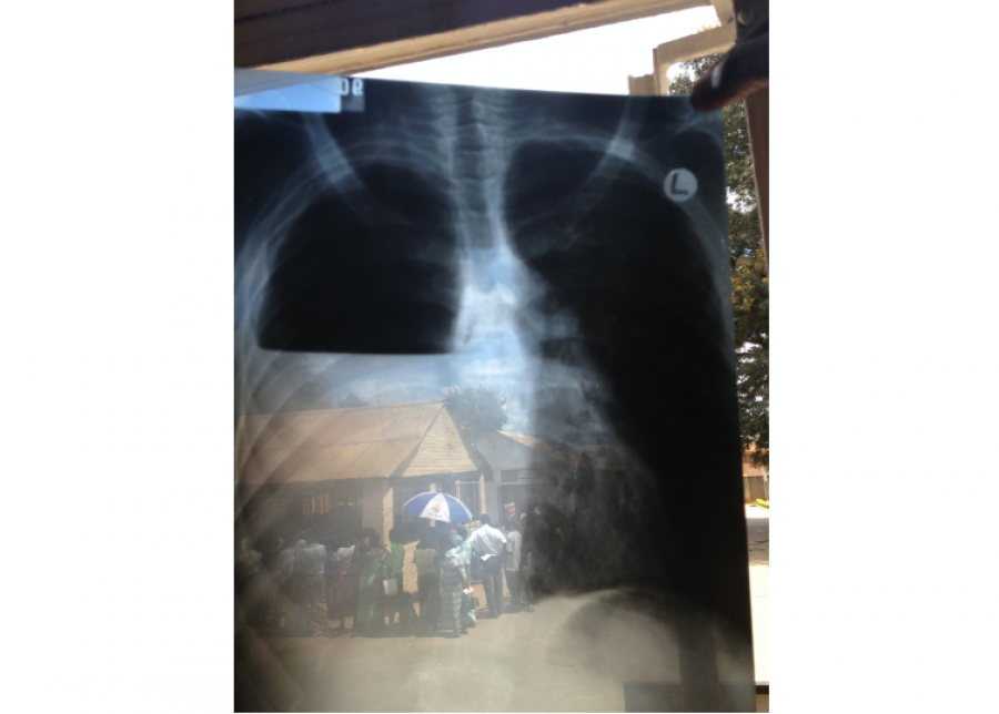 Ornella Punzo, 'Pleural effusion in a TB patient in the TB ward of Bwaila hospital, Lilongwe, Malawi',_0.jpg